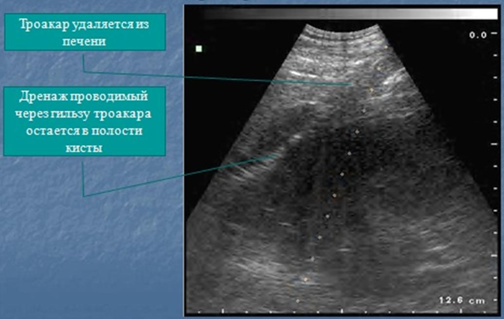Гепатоз диффузные изменения поджелудочной железы